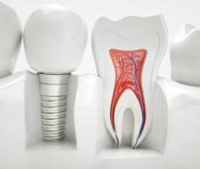 できるだけ歯を抜かない・削らない・歯の神経を抜かない診療を心がけています。