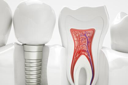 できるだけ歯を抜かない・削らない・歯の神経を抜かない診療を心がけています